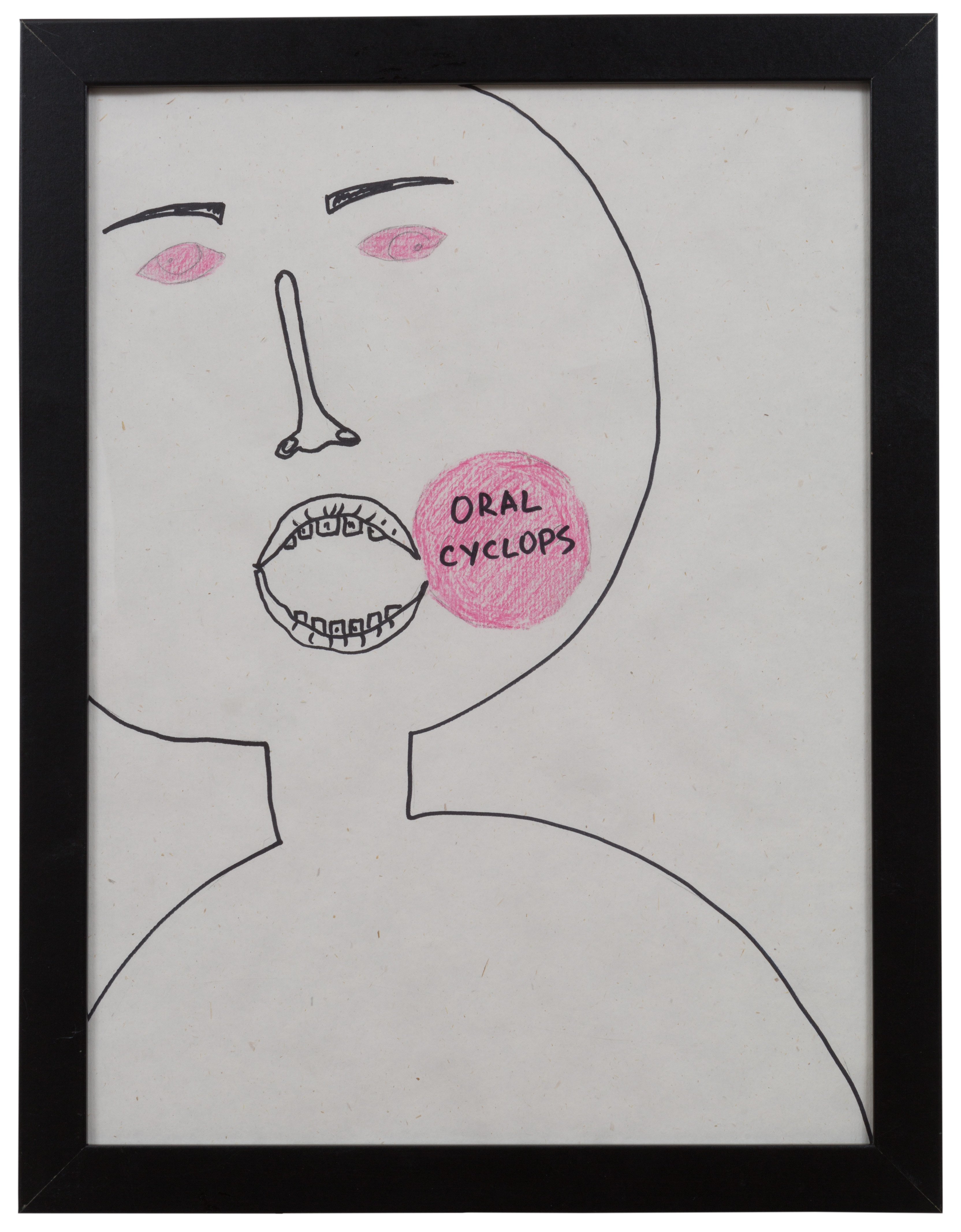 «Oral Cyclops»